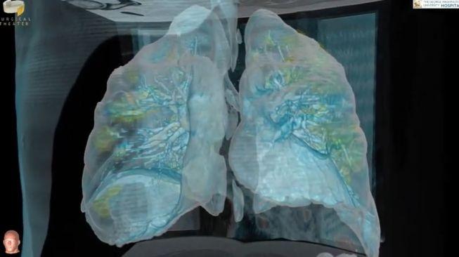 Cuplikan foto dari video 3D paru-paru pasien Covid-19 di Amerika Serikat. [Youtube/Surgical Theater]