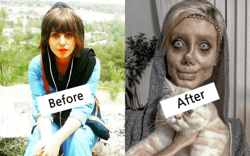 """Sự thật về cô gái """"xấu như ma"""" sau phẫu thuật thẩm mỹ để giống A.Jolie"""
