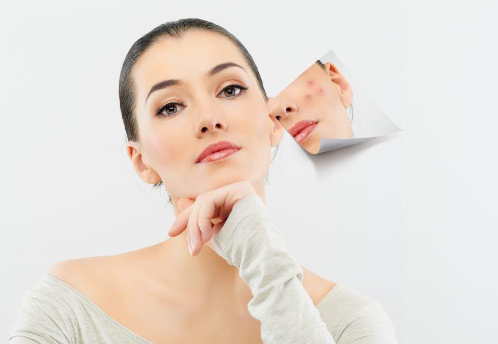 9 mẹo làm đẹp phổ biến mà con gái không nên dại dột áp dụng (Phần 1)