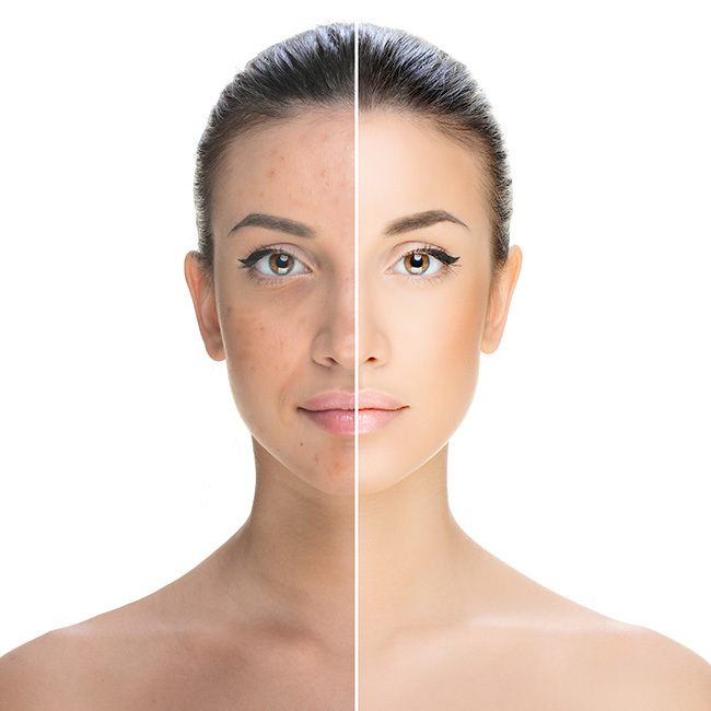 pigmentation_article