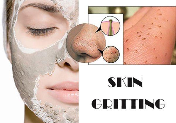skin-gritting-0-1170x816