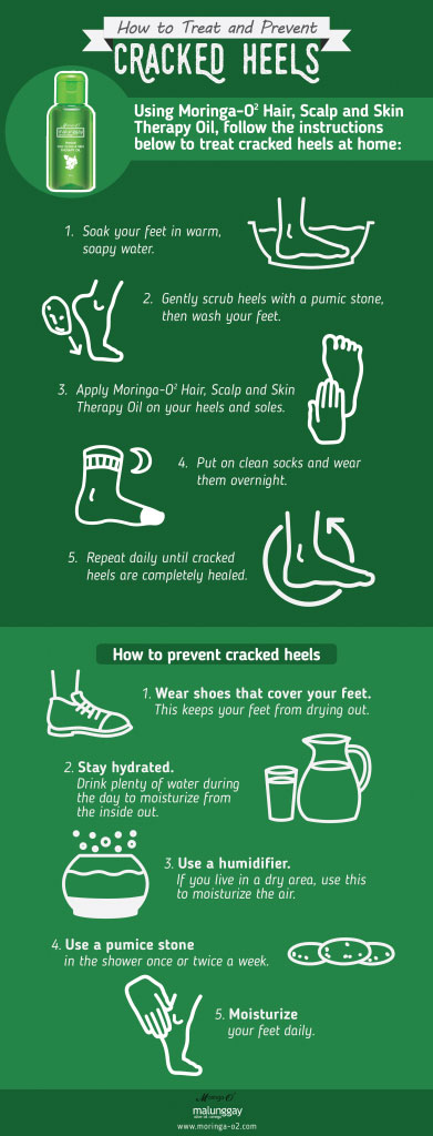 [Infographic] Follow these steps to treat and prevent cracked heels