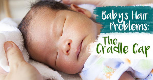 Baby Hair Problems: The Cradle Cap