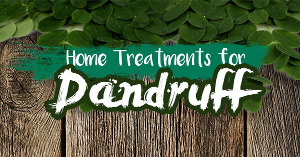 Home Treatments for Dandruff