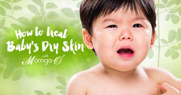 Moringa-O2 - How to Treat Baby's Dry Skin with Moringa O2