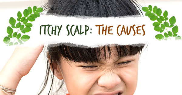 Itchy Scalp: The Causes