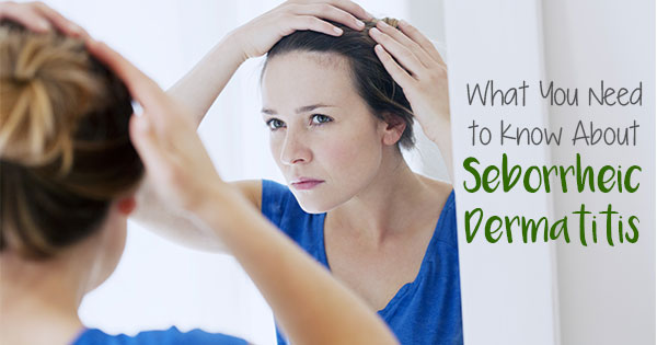 What You Need to Know about Seborrheic Dermatitis