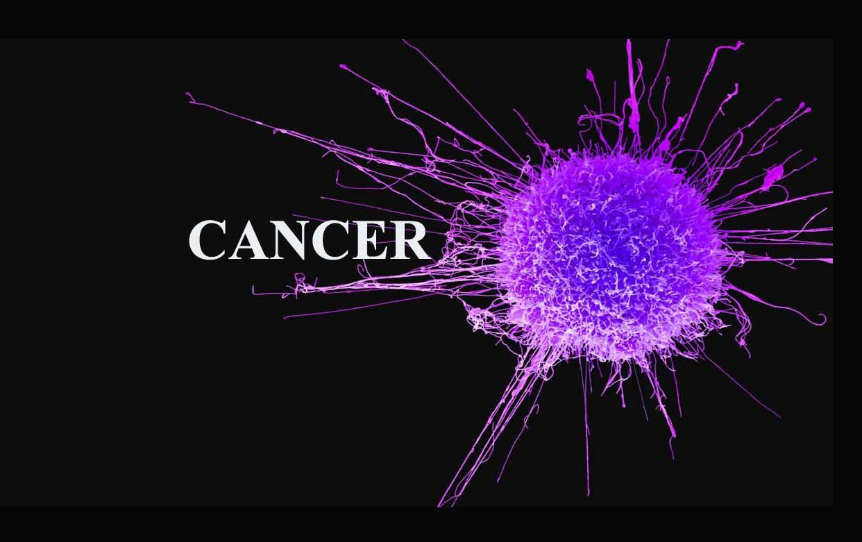 Colon Cancer Risk