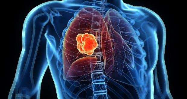 Lung cancer rates are rising in young women