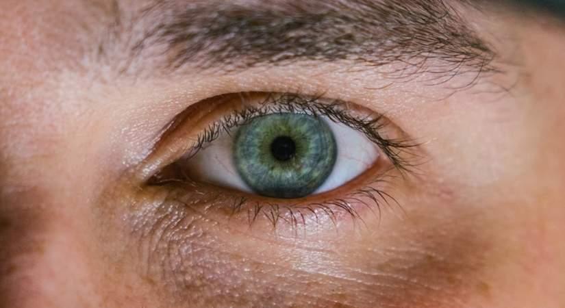 eye dark circles