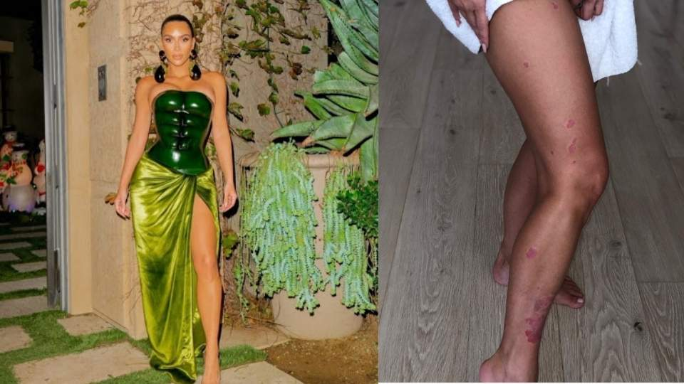 Kim Kardashian Discusses 'Painful and Scary' Psoriatic Arthritis Diagnosis
