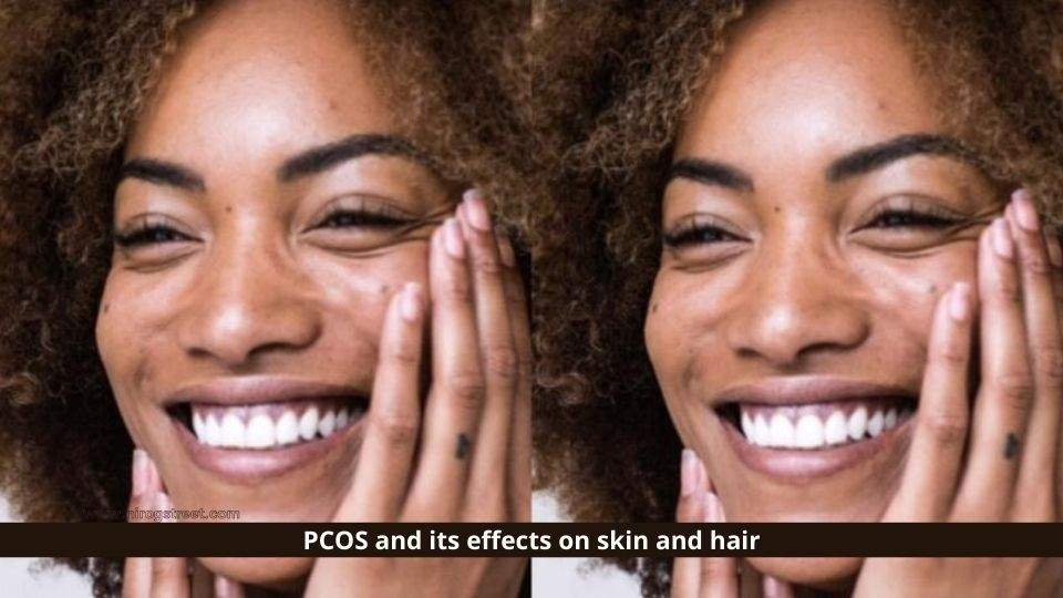 PCOS and Its Effects on Skin and Hair