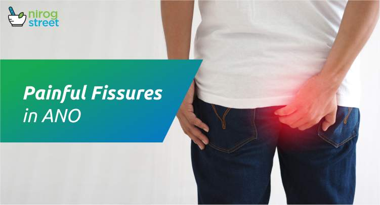 Painful Fissures in Ano