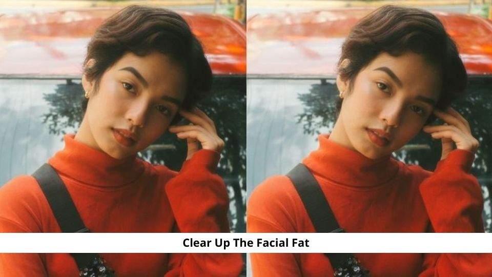 Facial Fat
