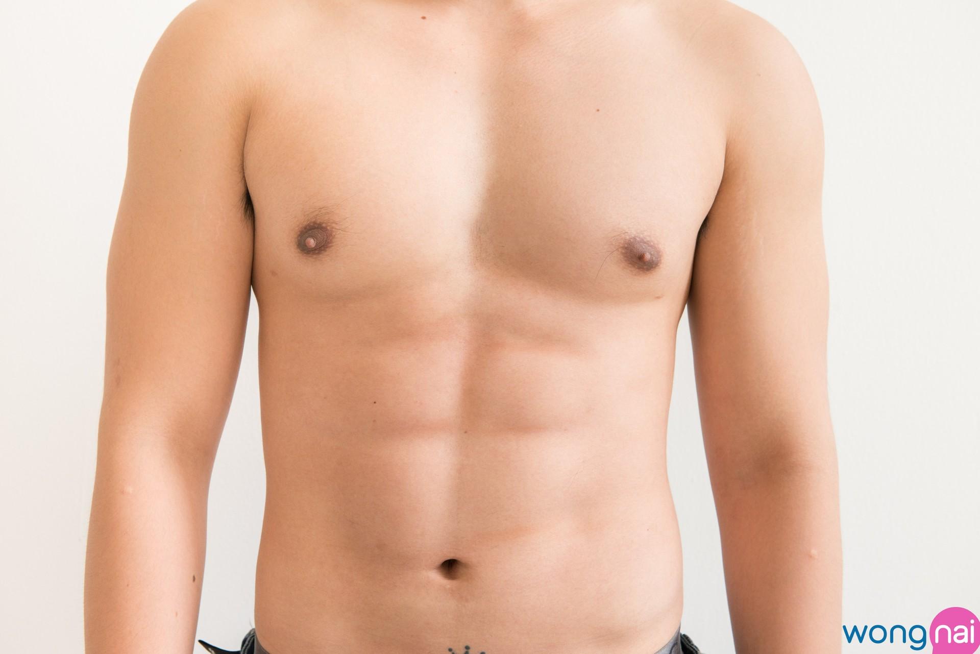 ดูดไขมัน! เปลี่ยนพุงพลุ้ยเป็นซิกแพค ที่ณรวีคลินิก (อุดมสุข30)