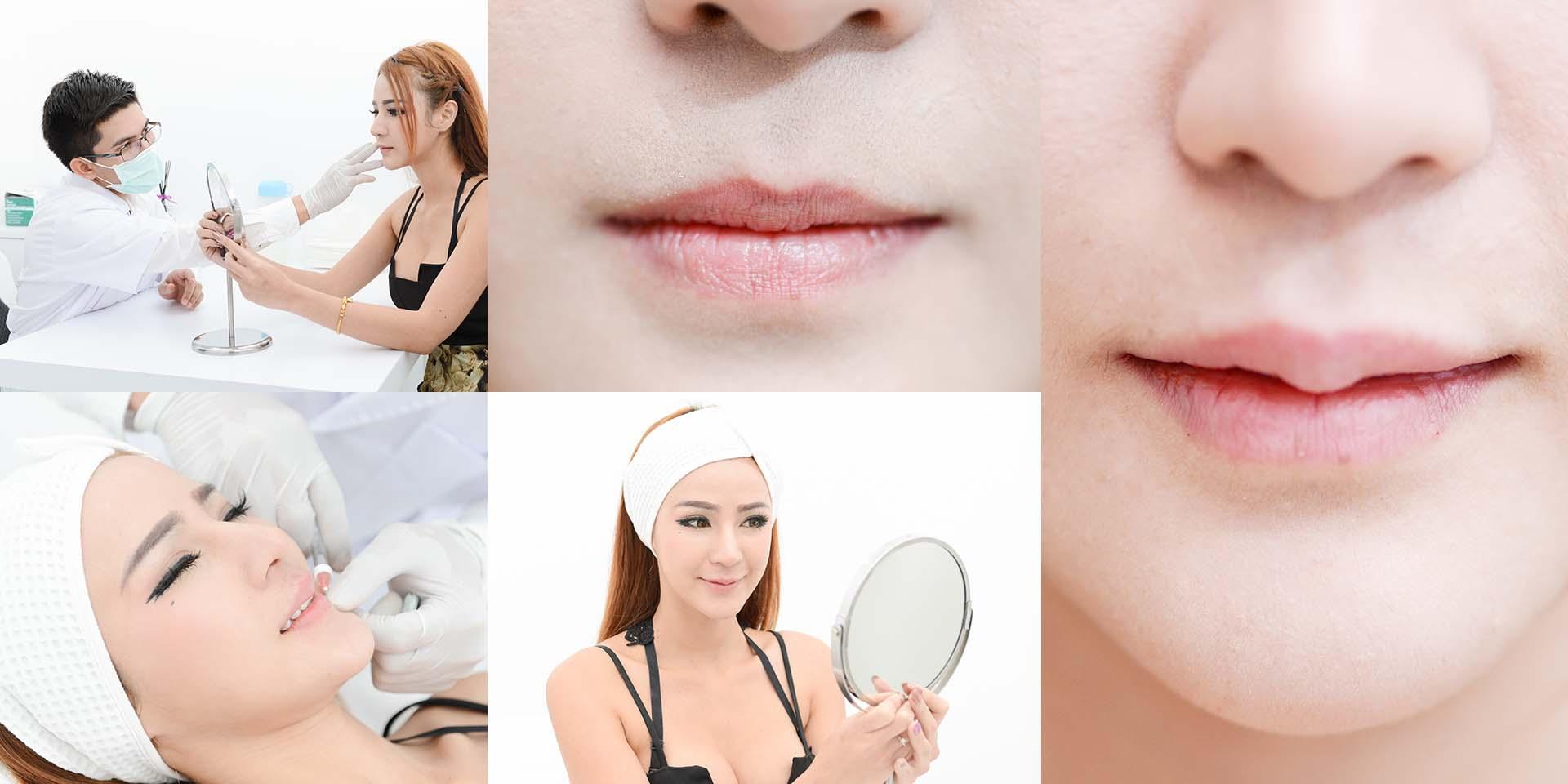 ปากกระจับสวยได้รูป มีได้ง่ายๆ โดยไม่ต้องผ่าตัด! ที่ Simply Clinic