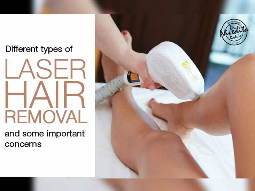 Face Laser Hair Removal Cost In Delhi Dr Nivedita Dadu Is T