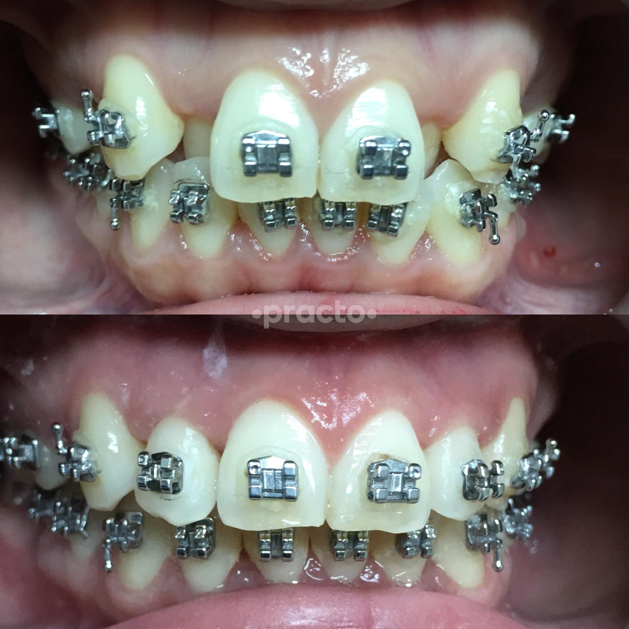 Best Dental Clinics in Jakarta - Book Appointment, View Reviews