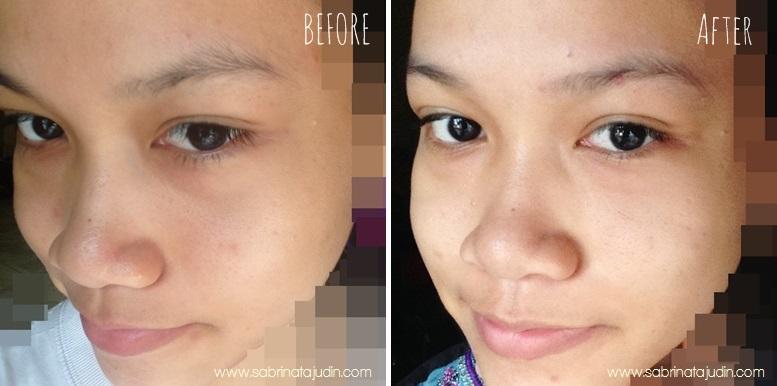 Skincare untuk kulit berminyak pori besar kedut harga malaysia (2).jpg