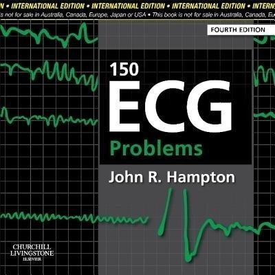 150 Ecg Problems (Ie) by Hampton on Textnook.com