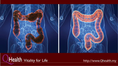 A Complete Bowel Cleanse to Remove Waste and Toxins In Your Gut.. Image Size:400x225px