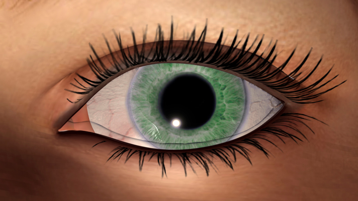 What 9 Things Your Eyes Can Reveal About The State of Your Health. Image Size:720x405px