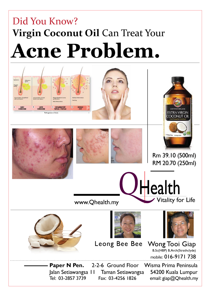Marketing Flyer Design to Boost New Customer Acquisition Using Virgin Coconut Oil To Treat Acne. Image size:720x1017px