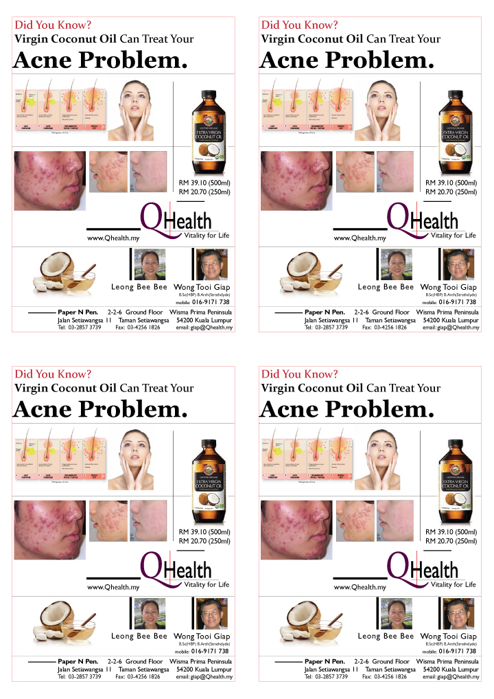 4 Up A6 Marketing Flyer Design to Boost New Customer Acquisition Using Virgin Coconut Oil To Treat Acne. Image size:720x1018px