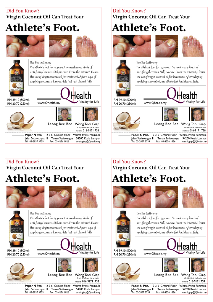 4 Up A6 Marketing Flyer Design to Boost New Customer Acquisition Using Virgin Coconut Oil To Treat Athlete Foot. Image size:720x1018px