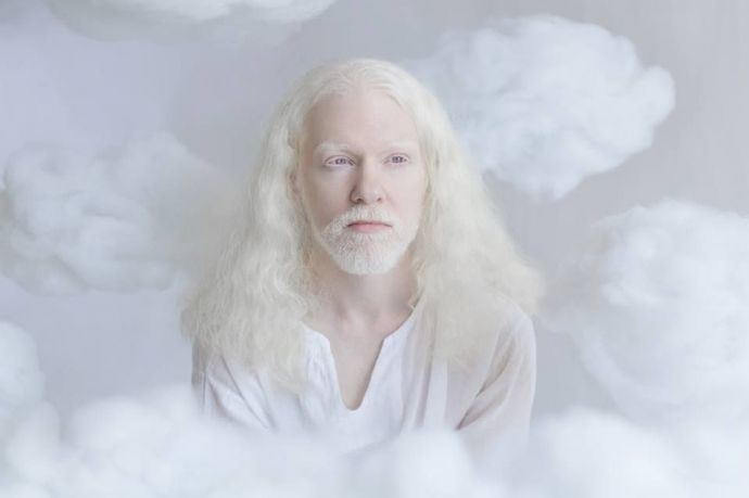 Albino People, Photography, Yulia Taits