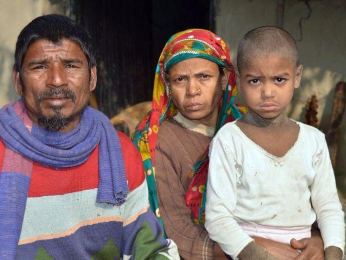 mehendi hassan, bangladesh, boy, greyscale, skin, stone, disease