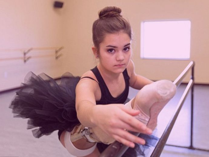 Gabi Shull, dancer, metal leg, Ballerina, osteosarcoma, Rotationplasty