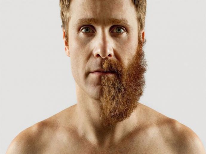 men, beard, thick, sparse, long, androgen, testosterone, follices, hair, growth, science, facial hair