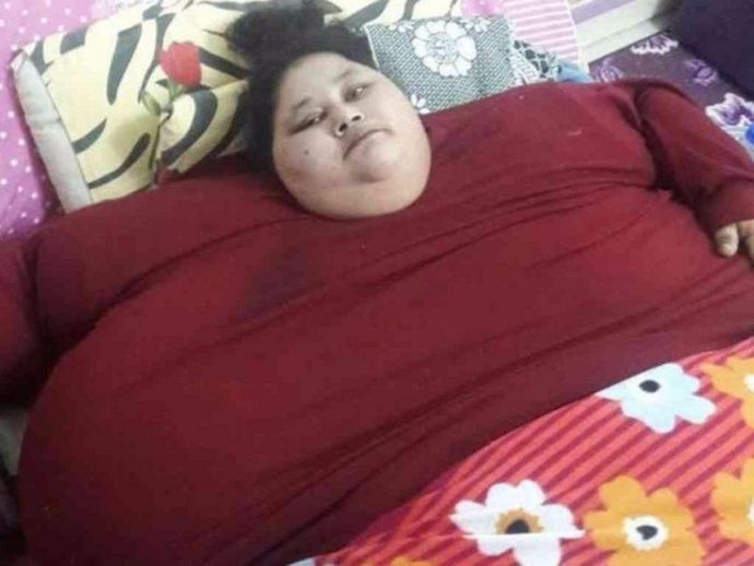 Heaviest Woman, Weight Reduction Surgery, Eman Ahmed, Muffazal Lakdawala, Fattest Woman, Sushma Swaraj