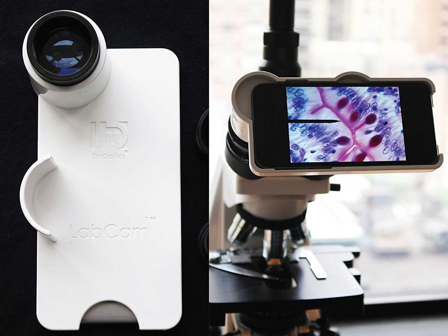 Microscope, Iphone, Camera, Idu, digital photomicrographs, adaptors