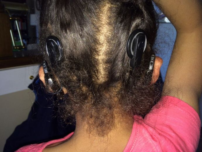 Nagpur, ear, implants, first ear, second ear, cochlear, hearing, device, children, child, kids, disability, speech, therapist, doctor, centre, state, government, funding, financing, expenses, free, audiologist, equipment, training, after care, ADIP, Shrav
