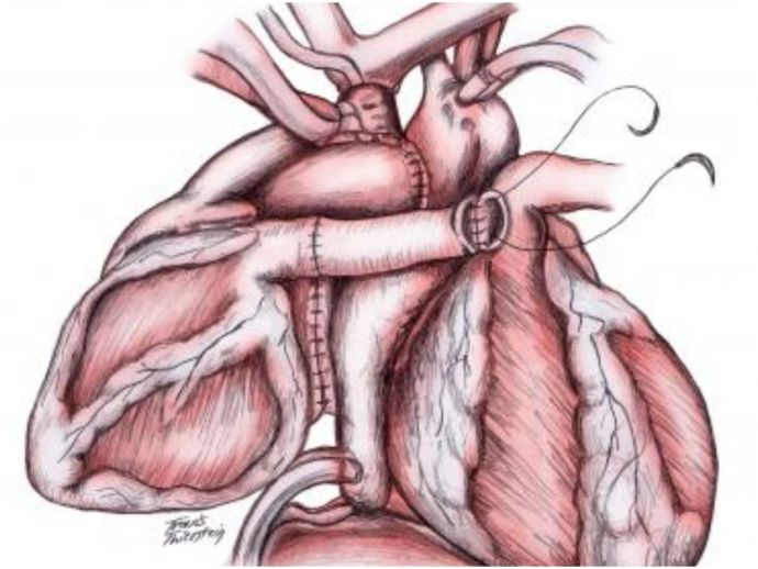 medicine, surgery, surgeons, heart surgery, transplant, heart transplant, two beating hearts, once in a lifetime surgery, hyderabad, apollo hospital, piggyback heart transplant, rare, complicated, Cardiothoracic surgeon, patient