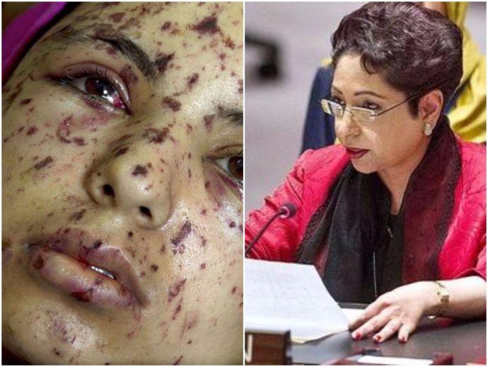 UNGA, Maheela Lodhi, Sushma Swaraj, India-Pakistan, Kashmir issue, Palestinian victim