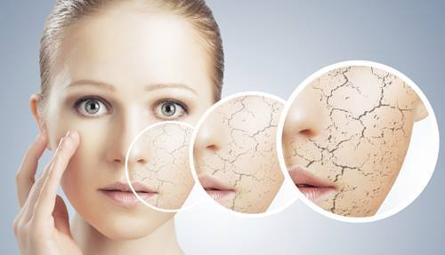 Winter Skin Care Must Haves | E-Commerce & Wholesale Solutions for the  M-SMEs
