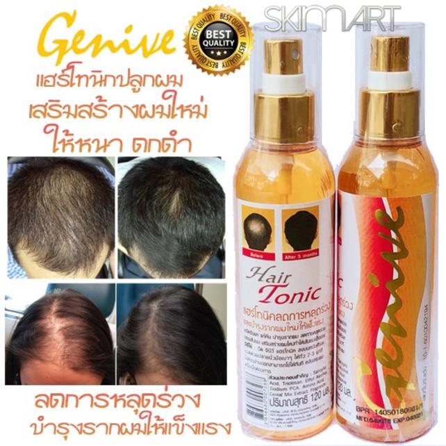 Chai xit kích mọc tóc Genive Hair Tonic ảnh 2