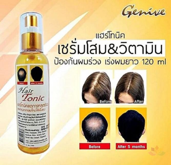 Chai xit kích mọc tóc Genive Hair Tonic ảnh 6