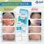 Kem trị mụn Yanhee Acne Cream ảnh 7