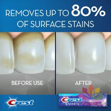 Kem đánh răng Crest 3D White Arctic Fresh ảnh 6