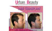 Urban Beauty Thailand offers BEST HAIR RESTORATION SURGERY in THAILAND