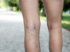 mencegah spider veins