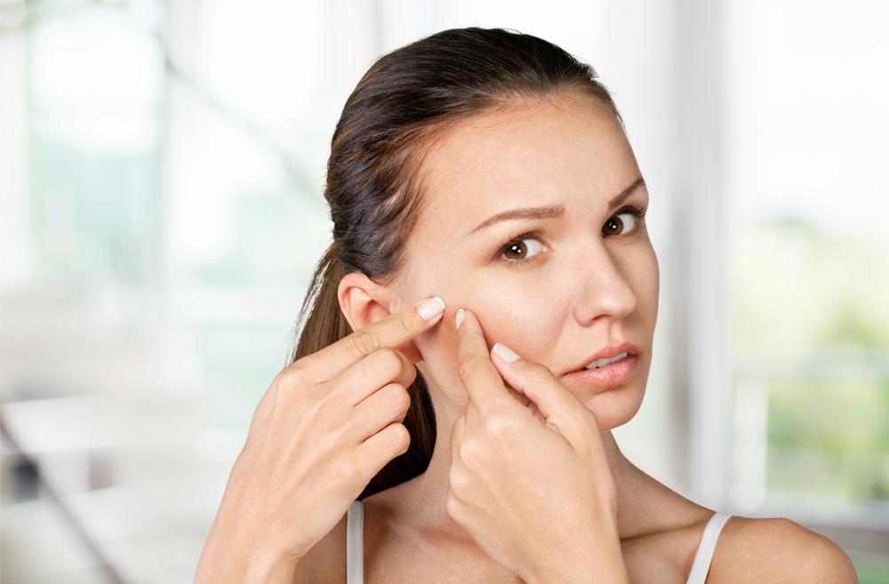 Cleanser yang tepat untuk kulit berjerawat