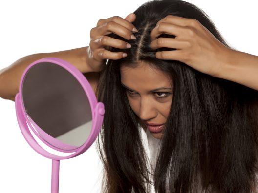 cara merawat kulit kepala