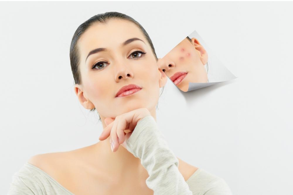 perawatan untuk kulit berjerawat