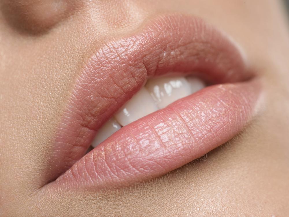 Bibir hitam