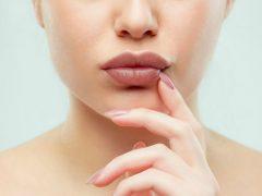 Penyebab Bibir Gelap